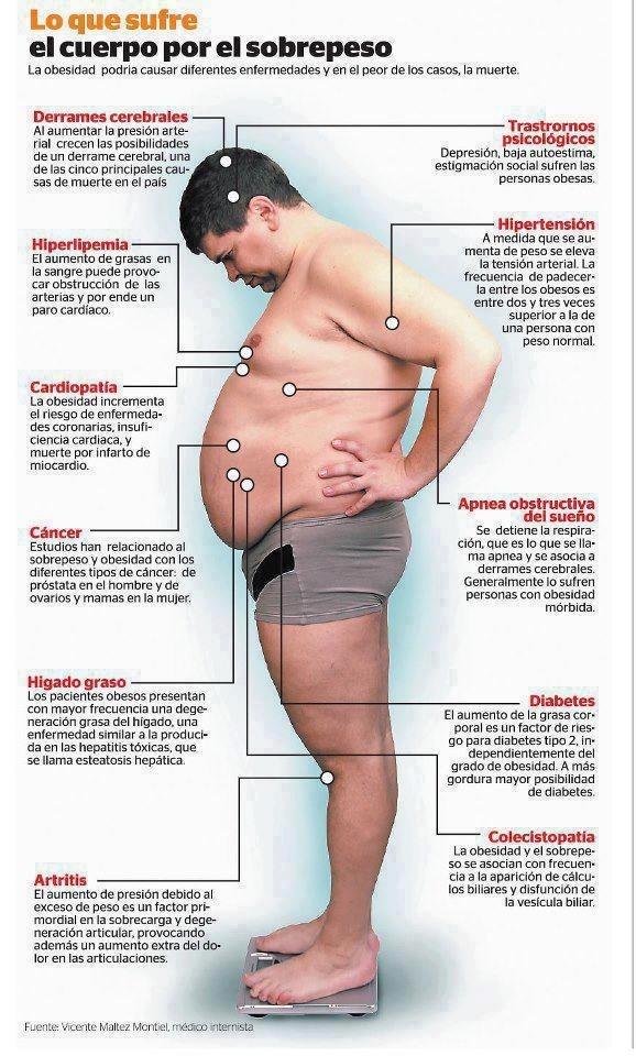 infografía sobrepeso